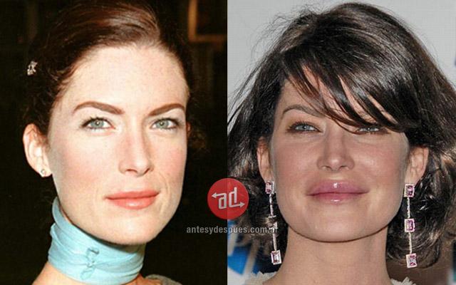 Foto del aumento de labios de Lara Flynn Boyle