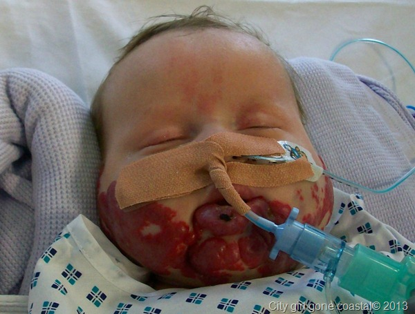 Ethan in picu