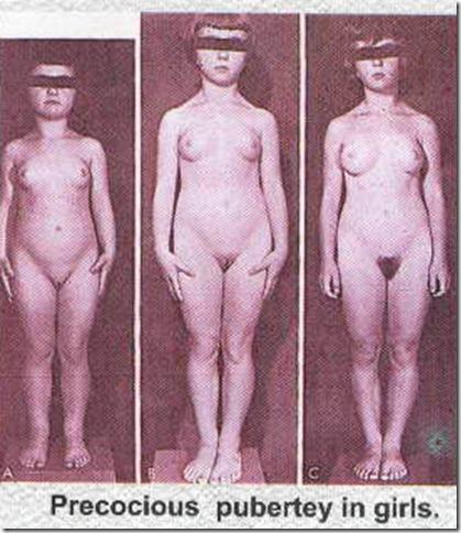 фото пизды во время пубертатного периода особую осторожность при