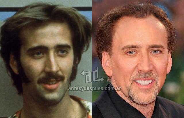 La caida del pelo de Nicolas Cage