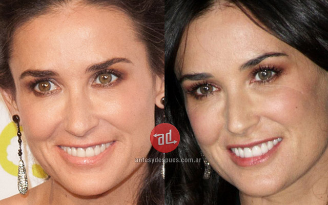Stars with Botox, Demi Moore