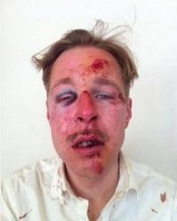 Paris - Les agresseurs homophobes du 8 avril 2013 n'étaient pas ceux que l'on croyait dans France agression+homophohe+Wilfried+paris+08+avril+2013