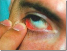 Anemia signs conjuctiva looks pale