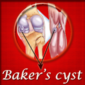 Bakers Cyst