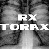 Radiografía Tórax (Radiología)