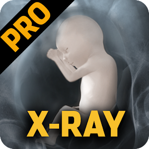 X-Ray Pro Body Scanner   FREE Android app market
