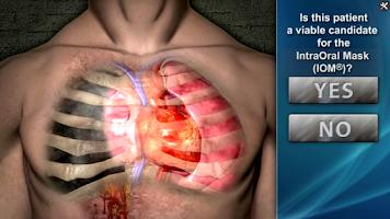 Screenshot of DeviceDrills: NuMask IOM®/OPA