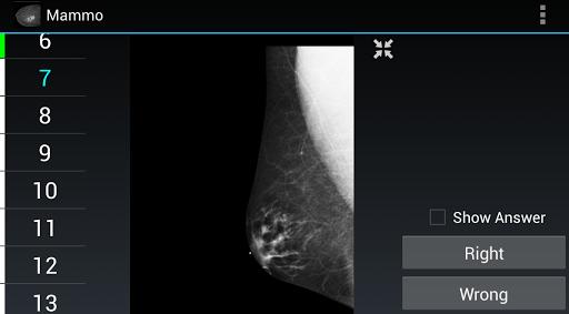 Radiology Flashcards: Mammo