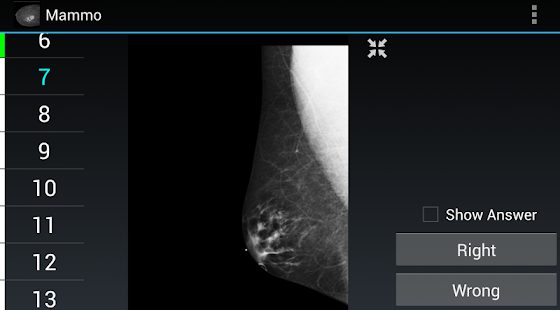 Radiology Flashcards: Mammo screenshot