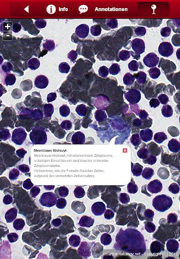 玩免費教育APP|下載Smart Hematology app不用錢|硬是要APP