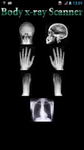 身體上的X射線掃描儀