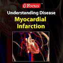 Myocardial Infarction logo
