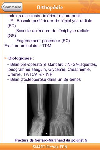 SMARTfiches Orthopédie Free- screenshot