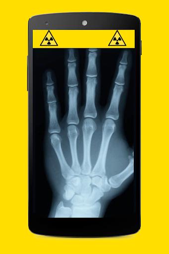 玩娛樂App|X射线扫描仪的恶作剧免費|APP試玩