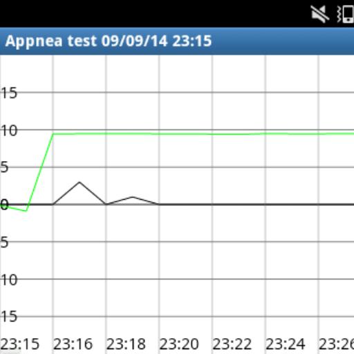 AppNea - Apnea Detector LOGO-APP點子