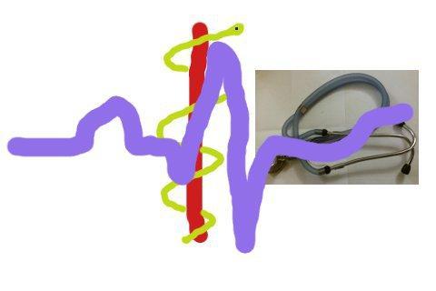 QTc calcolo QT ECG
