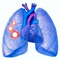 Pulmonary Nodule Fleischner icon