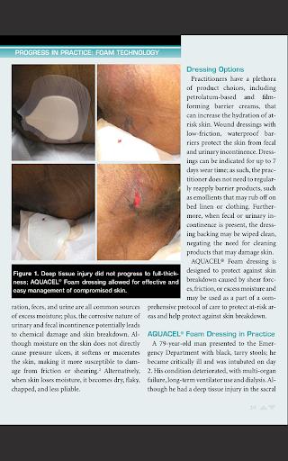 【免費醫療App】Ostomy Wound Management-APP點子