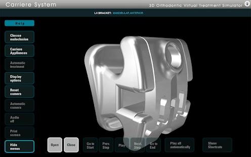 Carriere Ortho 3D- screenshot thumbnail