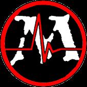 MTG EKG