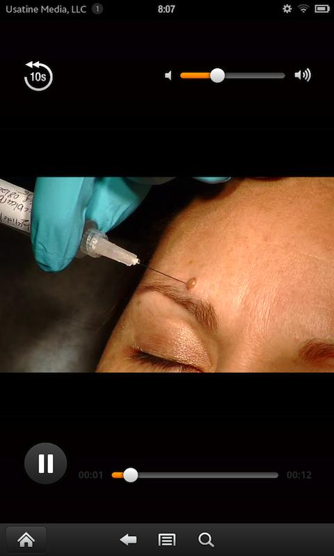 Dermatologic Procedures Screenshot 3