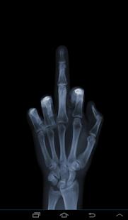 X射線掃描儀免費惡作劇