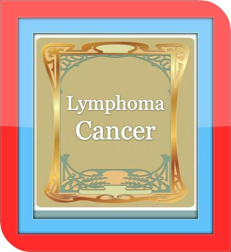 Lymphoma Cancer - Guide
