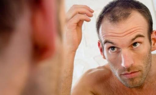 Hair Fall Men
