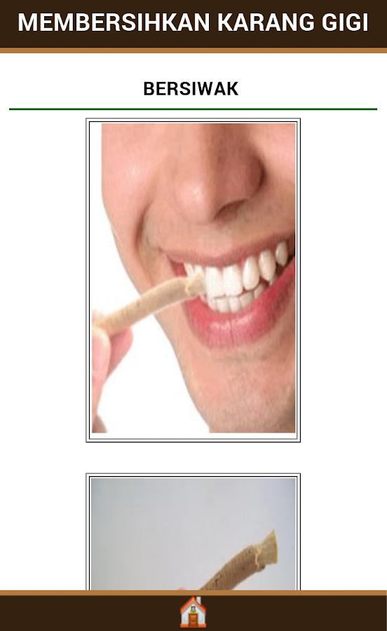 Cara Menghilangkan Karang Gigi Pada Anak