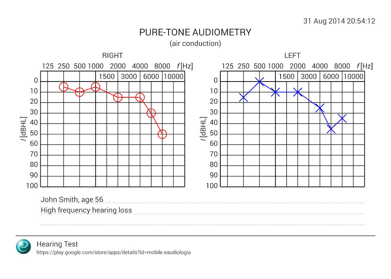 Exame audiograma