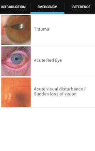 Eye Emergency Manual- screenshot thumbnail