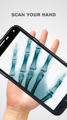 X射線掃描儀惡作劇