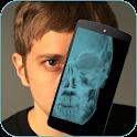 Skull X-ray Prank