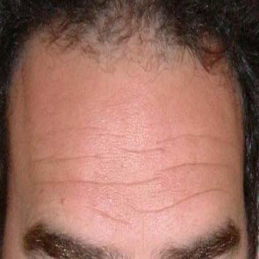 Forehead Reading