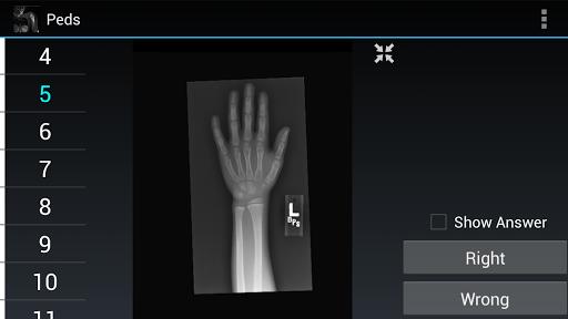 Radiology Flashcards: Peds