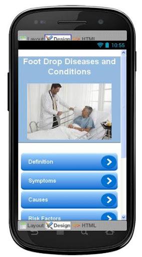 Foot Drop Disease Symptoms