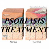 Psoriasis Treatment!