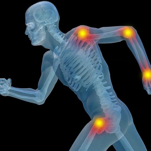 Arthritis Joint Pain 醫療 App LOGO-硬是要APP