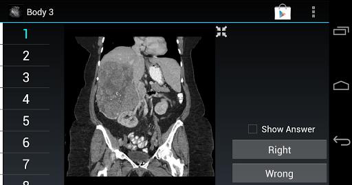 Radiology Flashcards: Body 3