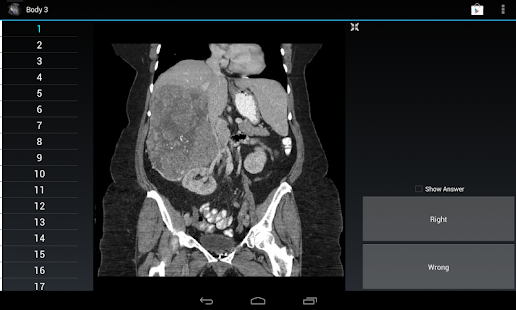Radiology Flashcards: Body 3 screenshot