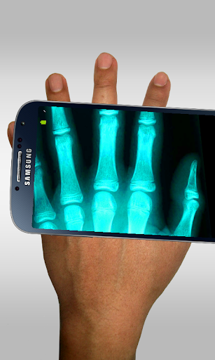 Xray Scanner Prank 14.0 screenshots 1