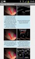 Screenshot of Vascular Ultrasound