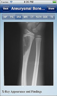 Tumorpedia Foot & Ankle- screenshot thumbnail