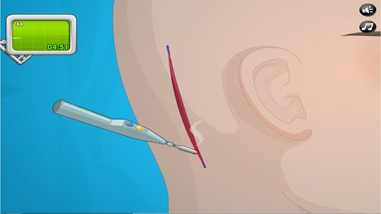Ear Surgery - screenshot thumbnail