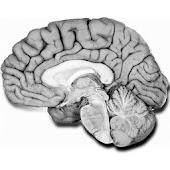 NeuroAnatomía preguntas examen
