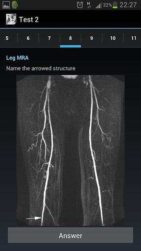 【免費醫療App】Radiological Anatomy For FRCR1-APP點子