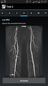 Radiological Anatomy For FRCR1 v1.3