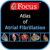 Atlas of Atrial fibrillation