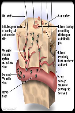 Shingles Symptoms Treatment