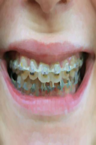 ดัดฟัน Dental Brace Booth